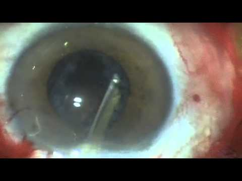 MSICS surgery without conjunctival peritomy