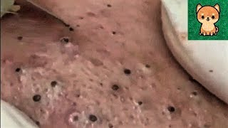 Satisfying Blackheads Removal, Acne Treatment Video with Sleep & Relaxing Music (Part 01)