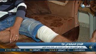 تقرير | جدل في غزة بعد تداول فيديو يظهر اعتداء الأمن على طلبة الأزهر ...