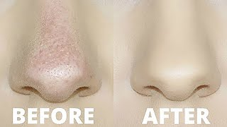 HOW TO STOP FOUNDATION RUBBING OFF YOUR NOSE! | OILY SKIN TRICKS!