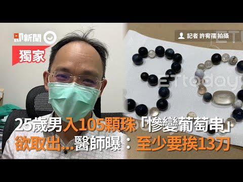 高雄25歲男入105顆珠變葡萄串欲取出 醫師:至少挨13刀|泌尿科|入珠