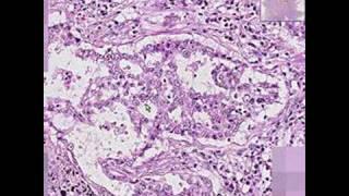 Histopathology Lung-- Adenocarcinoma