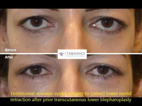 Revision Lower Eyelid Retraction Surgery