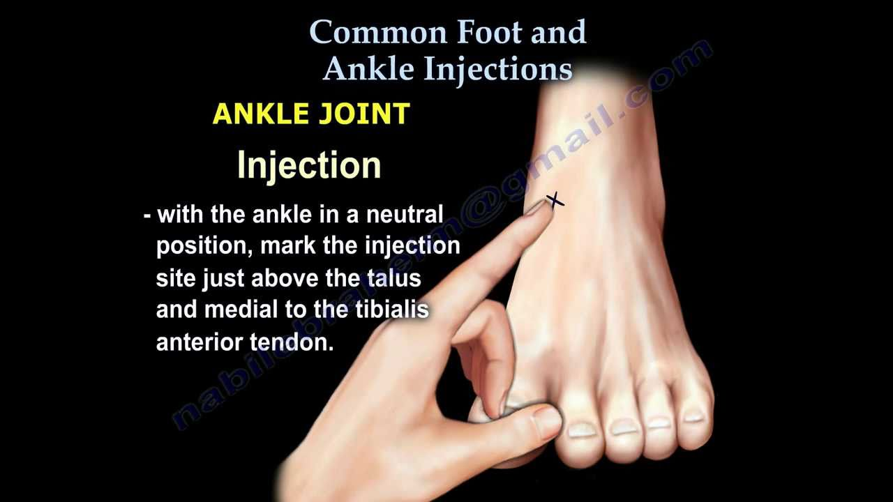 Common Foot And Ankle Injections Everything You Need To