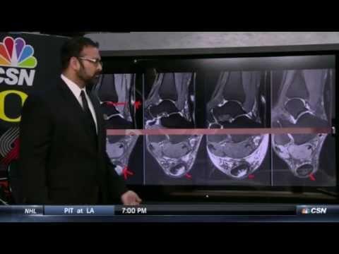 Dr.Desai- Wesley Matthews Injury- Rip City Live