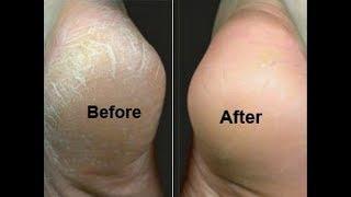 Mẹo trị nứt gót chân cực hiệu quả