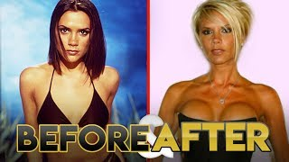 SPICE GIRLS | Before & After Transformations | Plastic Surgery, Diet, Exercise & more
