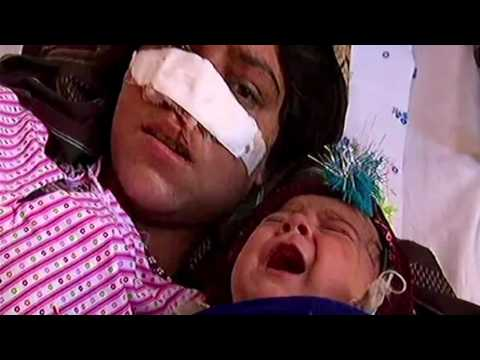 حركة طالبان تؤكد انها تبحث عن الافغاني الذي قطع انف زوجته