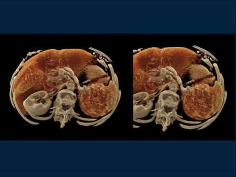 CTisus CT Scanning