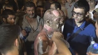 Участник протеста в Ереване доставлен в больницу с ожогами
