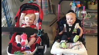 Formerly conjoined twins doing well after separation
