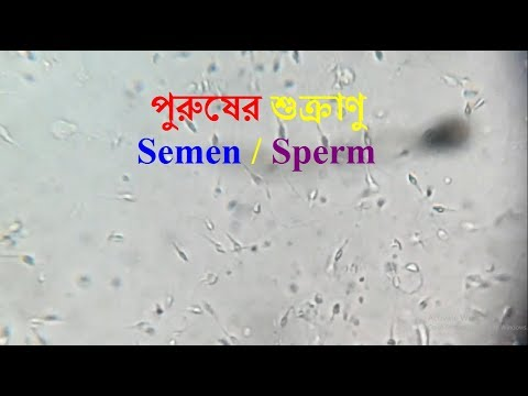 male fertility test | | ??????? ???????? ????? | sperm motility