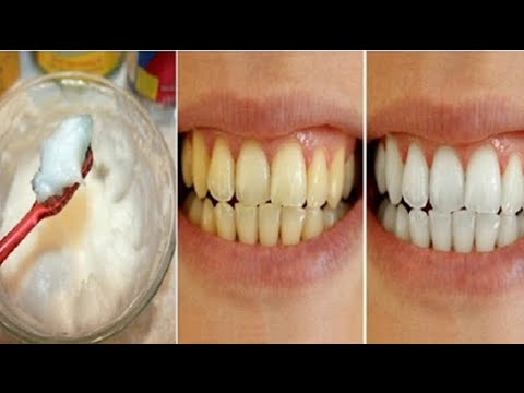 Como Clarear Os Dentes Com Casca De Banana Clareamento Dental