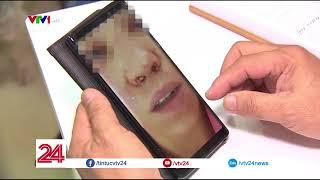 Nguy hiểm từ chất làm đầy trong phẫu thuật thẩm mỹ - Tin Tức VTV24