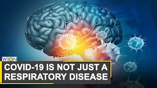 Coronavirus can trigger range of neurological problems | COVID-19 Impact | World News