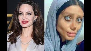 Iranian Woman Has 50 Surgeries to Look Like Her Idol Angelina Jolie