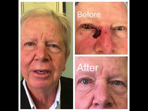 Eyelid Skin Cancer Reconstruction Surgery
