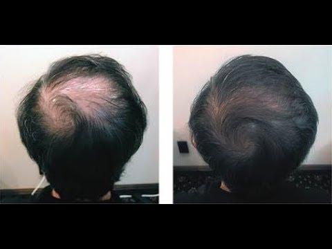 발모 돕는 양파주스 만들기 Onion juice for growth hair