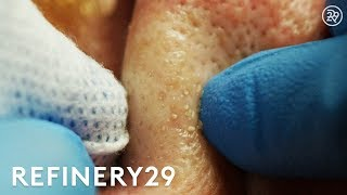 Why Extractions Are Satisfying To Watch But Dangerous | Macro Beauty | Refinery29