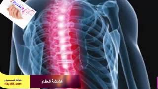 هشاشة العظام|علاج هشاشة العظام|هشاشة العظام وعلاجها|مرض هشاشة العظام -
