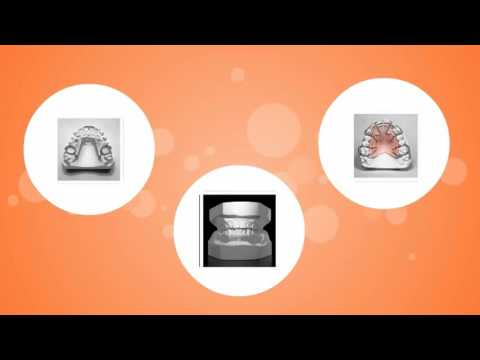 What are Retainers? -  Beecroft Orthodontics Video