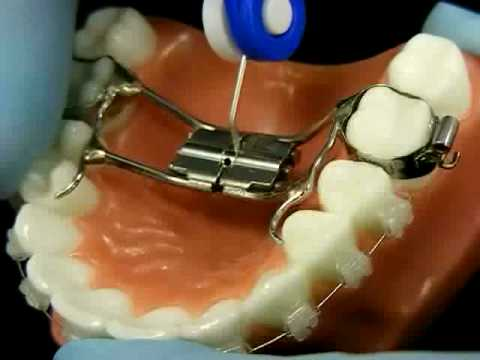 Bracesquestions Com Orthodontic Jaw Expander How To