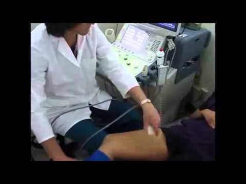 The Trouble with Manual Augmentations for Venous Exams