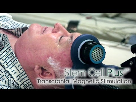 Transcranial Magnetic Stimulation (TMS) | Beike Stem Cell Plus+™
