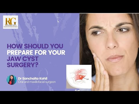 How should you prepare for your jaw cyst surgery?