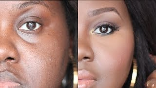 How to Conceal Deep Set Under Eyes: [Detailed talk through tutorial] | Chanel Boateng