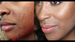Cover Blemishes/Faux