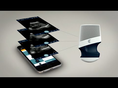 Introducing the Clarius Mobile Ultrasound Scanner