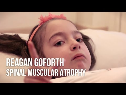 Reagan Goforth, Spinal Muscular Atrophy | Stem Cell Treatment Testimonial