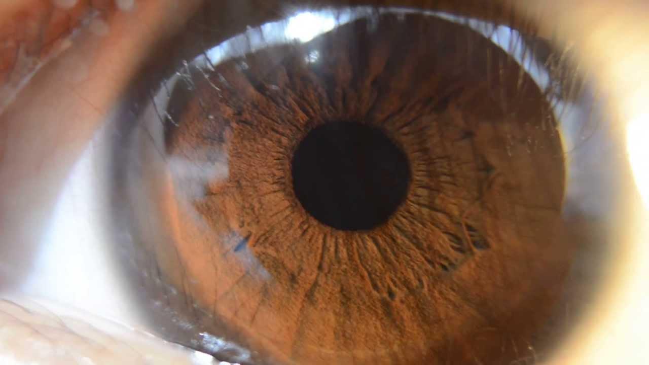 Detailed Brown Iris HD...