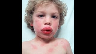 Anaphylaxis and Acute Allergic reaction - how to help