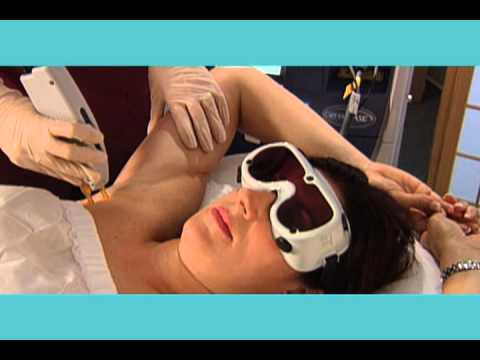 Laser Hair Removal with GentleMax