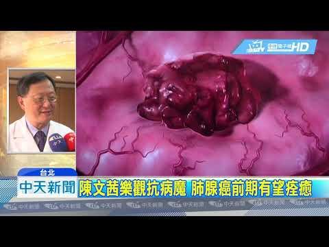 20190318中天新聞 陳文茜罹肺腺癌 醫:前期有機會痊癒
