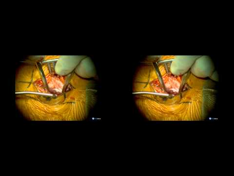 Minimally Invasive Resection of a High-Thoracic Intradural Extramedullary Tumor: 3-D Video