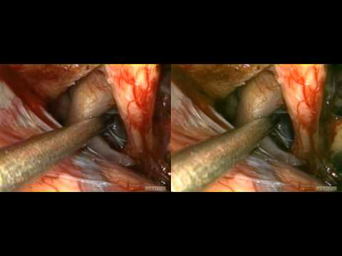 visionsense 3D endoscopic supraorbital approach_SBS