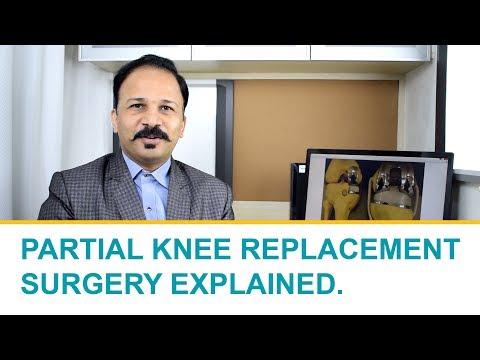 What is Partial Knee Replacement Surgery? - Explained byExpert Surgeon Dr. Shailendra Patil, Loc:Kalyan, Bhandup, Vikhroli, Thane, Mumbai
