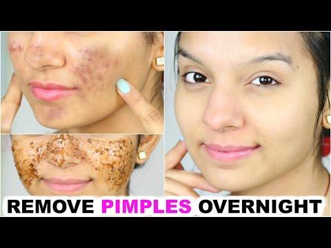 Remove Pimples OVERNIGHT | 100% Success | Anaysa