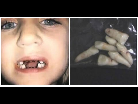 아이가 치과에 가기 무서웠던 이유