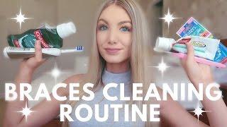 Braces Cleaning Routine | Water Flosser, Keeping Teeth White, Brushing etc.