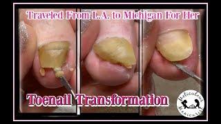 👣 Pedicure Tutorial: Satisfying Toenail Transformation 👣