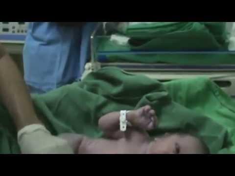 Baixar parto pelvico realizado na marteclin de rondonopolis-mt
