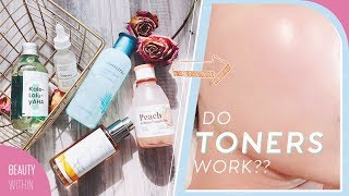 How to Use Toners to Get Clear Skin: Toner for Oily, Acne-prone, Dry & Sensitive skin