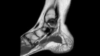 Ankle MRI anatomy