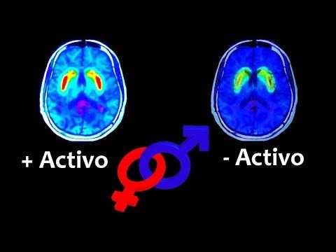 El cerebro femenino es más activo | Noticias 14/8/2017