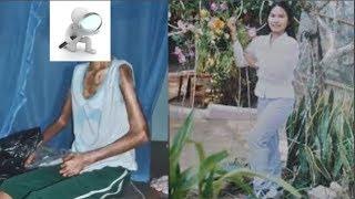 Người phụ nữ xinh đẹp mắc bệnh lạ biến thành bà cụ ở Bình Định