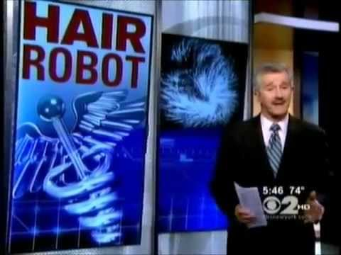 Dr. Bernstein Talks Robotic FUE Hair Transplantation On CBS NY1